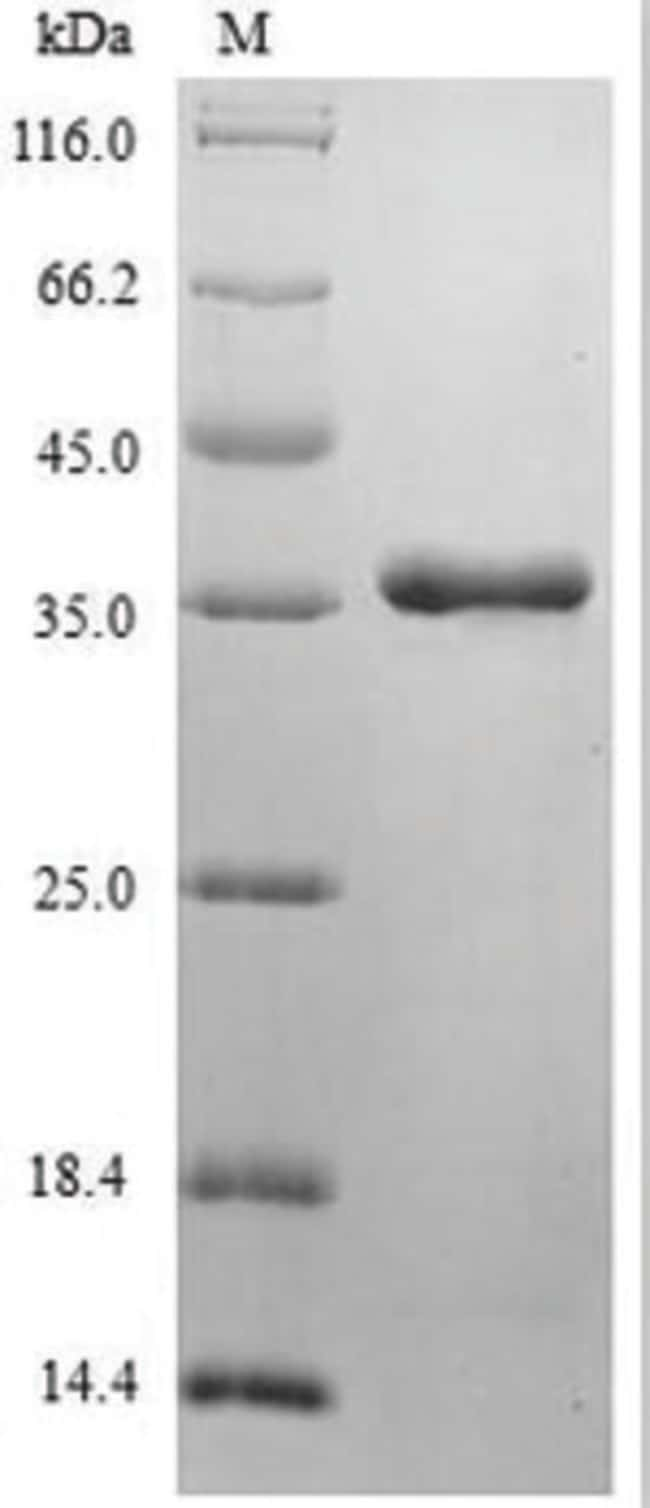 enQuireBio™Recombinant Human FGF10 / KGF2 Protein 200μg enQuireBio™Recombinant Human FGF10 / KGF2 Protein