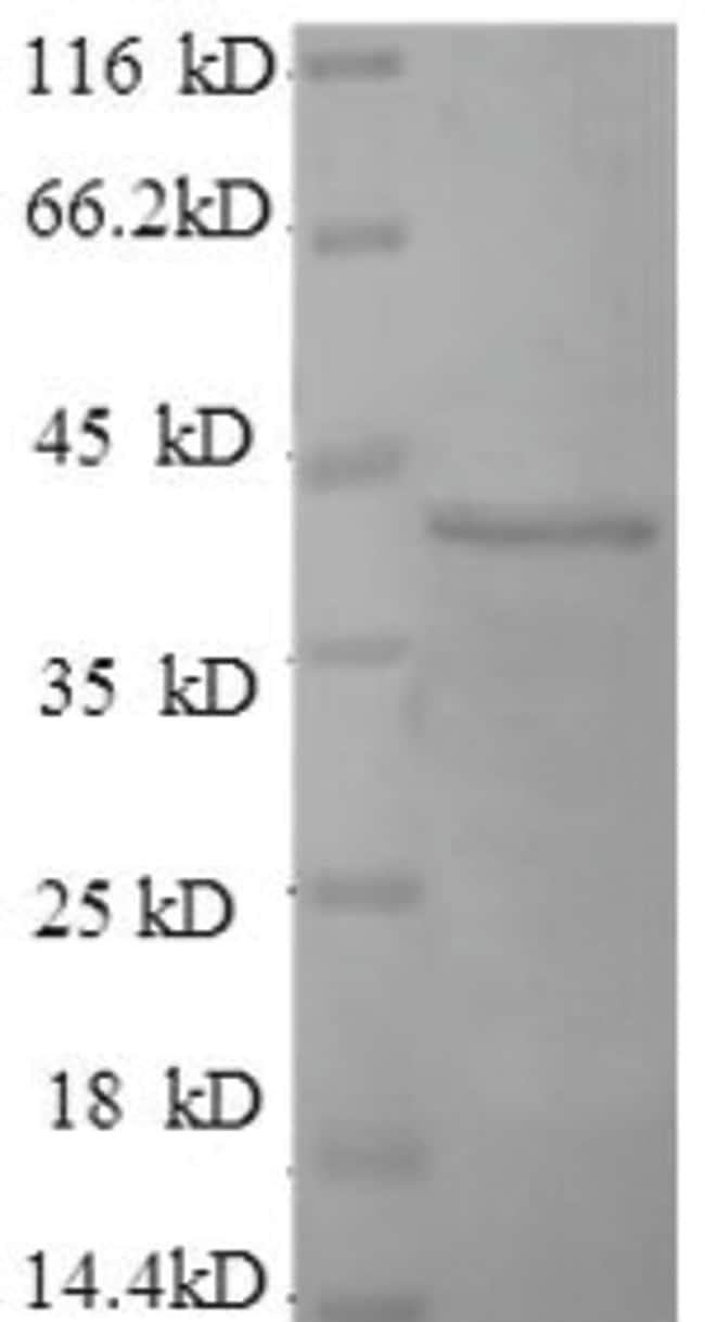 enQuireBio™Recombinant Human FGFR3 / CD333 Protein 200μg enQuireBio™Recombinant Human FGFR3 / CD333 Protein