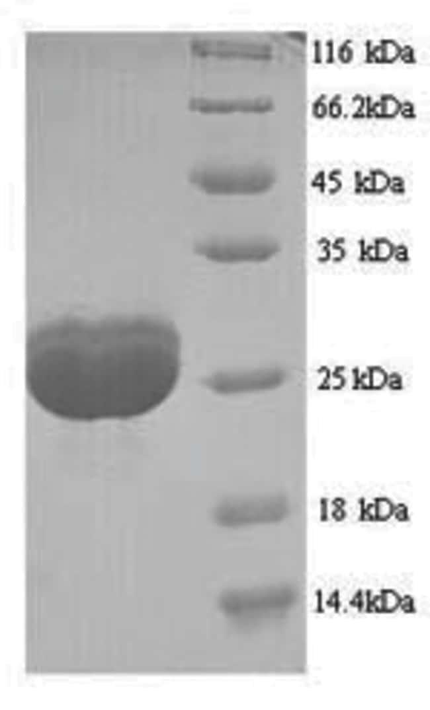 enQuireBio™Recombinant Human Filaggrin Protein 1mg enQuireBio™Recombinant Human Filaggrin Protein