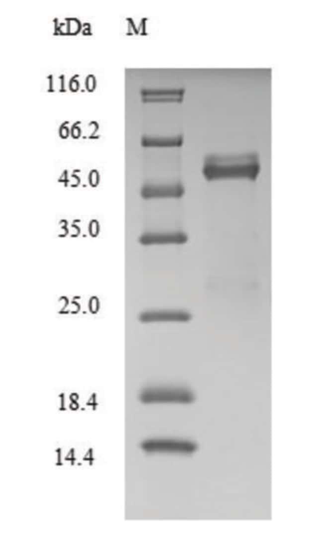 enQuireBio™Recombinant Human Fos-related antigen 2 Protein 1mg enQuireBio™Recombinant Human Fos-related antigen 2 Protein