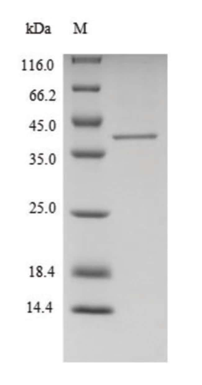 enQuireBio™Recombinant Human FTSJ1 Protein 200μg enQuireBio™Recombinant Human FTSJ1 Protein