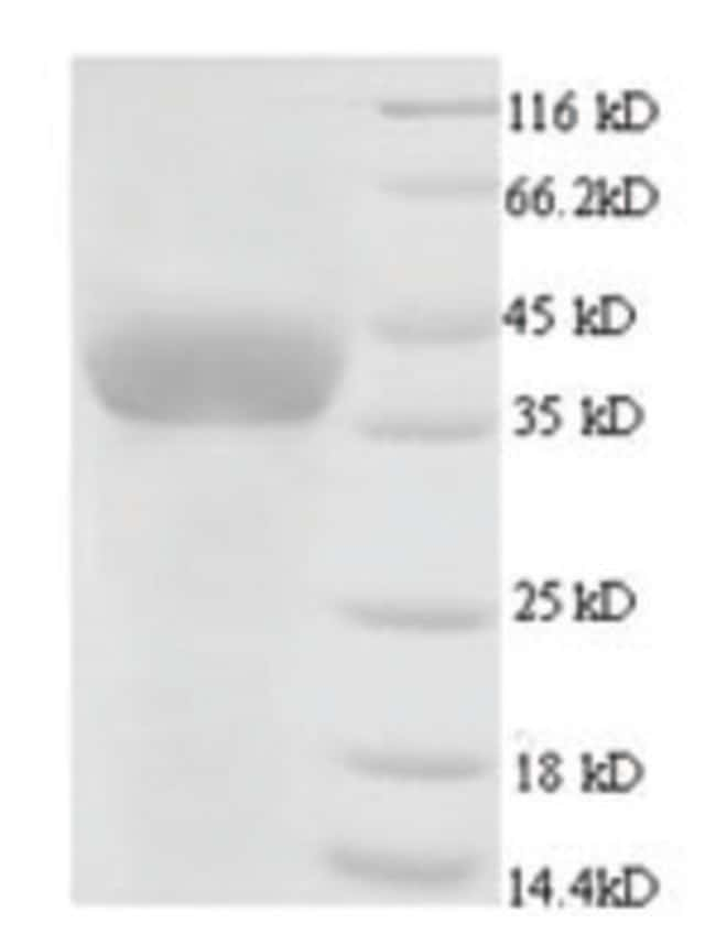 enQuireBio™Recombinant Chicken GAPDH Protein 1mg enQuireBio™Recombinant Chicken GAPDH Protein