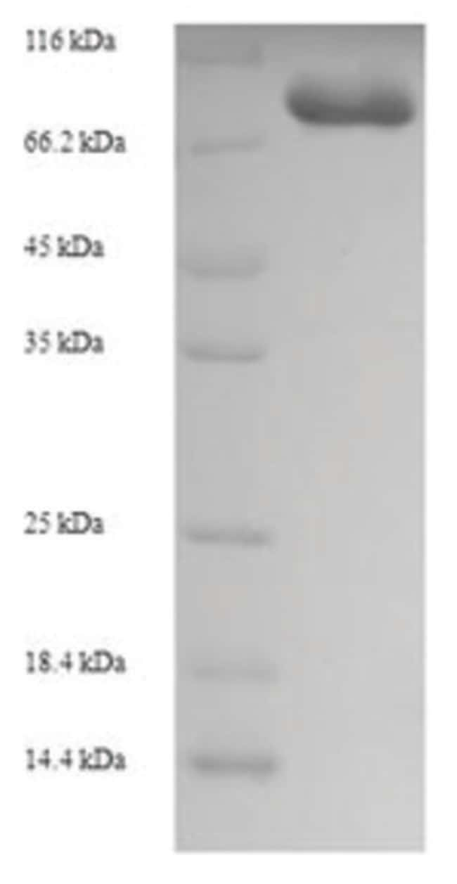 enQuireBio™Recombinant Human Glycerol kinase 2 Protein 200μg enQuireBio™Recombinant Human Glycerol kinase 2 Protein