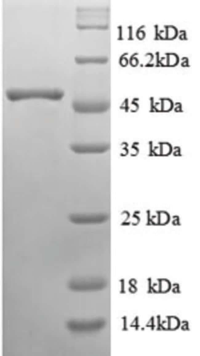 enQuireBio™Recombinant Human alpha-Galactosidase A / GLA Protein 1mg enQuireBio™Recombinant Human alpha-Galactosidase A / GLA Protein