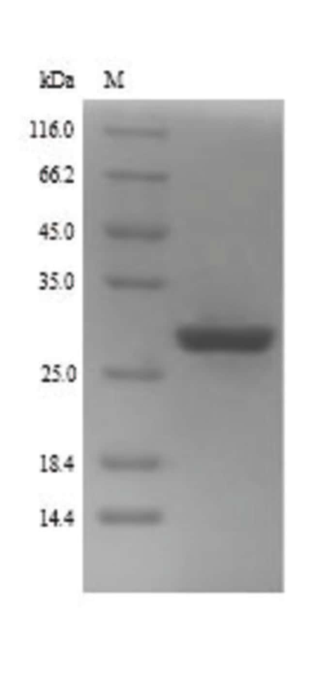 enQuireBio™Recombinant Human Zinc finger protein GLI2 Protein 100μg enQuireBio™Recombinant Human Zinc finger protein GLI2 Protein