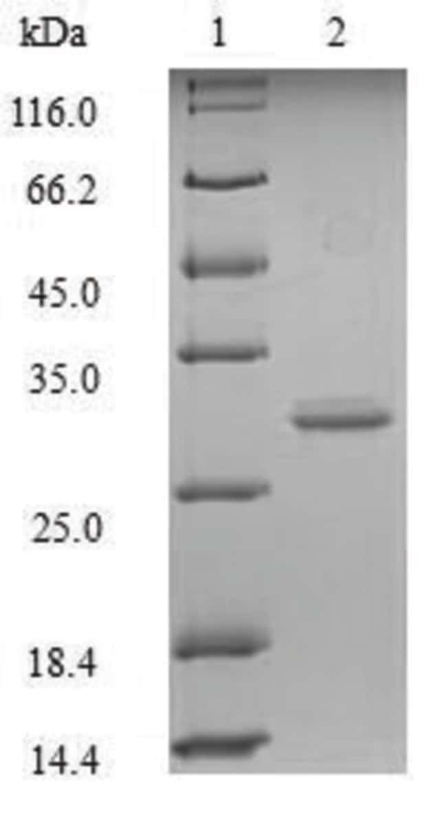 enQuireBio™Recombinant Mouse GLP-1R / GLP1R Protein 200μg enQuireBio™Recombinant Mouse GLP-1R / GLP1R Protein