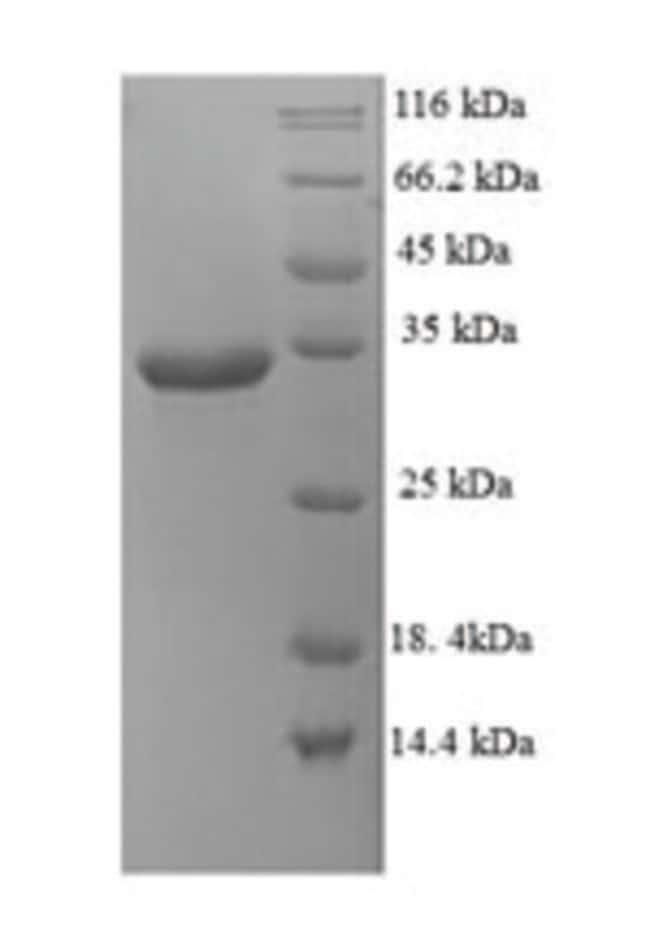 enQuireBio™ Recombinant Human Probable G-protein coupled receptor 75 Protein 50μg enQuireBio™ Recombinant Human Probable G-protein coupled receptor 75 Protein