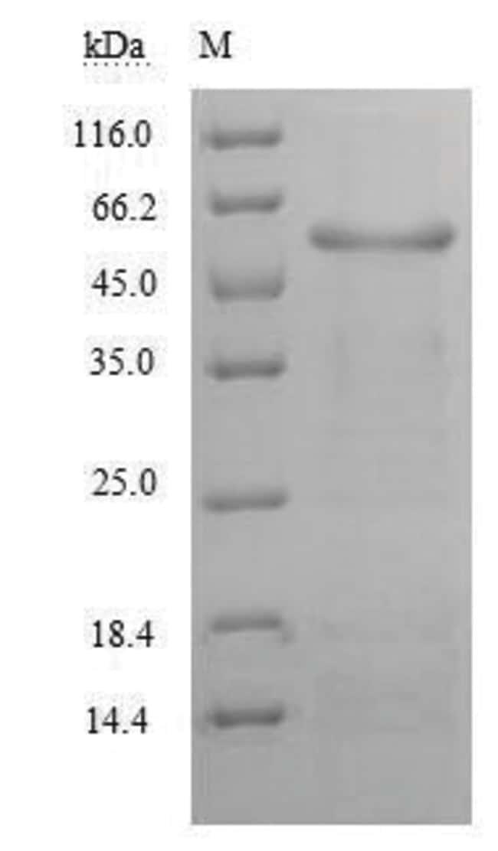 enQuireBio™Recombinant Human Alanine aminotransferase 1 Protein 1mg enQuireBio™Recombinant Human Alanine aminotransferase 1 Protein