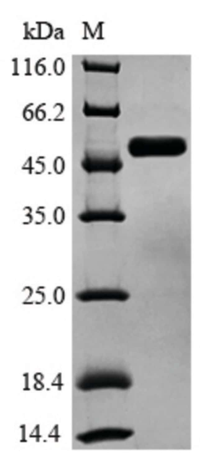 enQuireBio™Recombinant Human GSK3B Protein 100μg enQuireBio™Recombinant Human GSK3B Protein