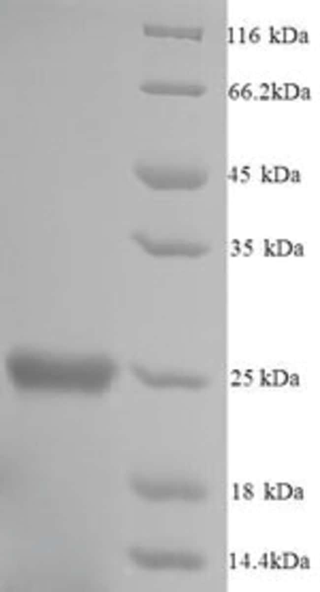 enQuireBio™Recombinant Mouse Glutathione S-transferase P 1 Protein 500μg enQuireBio™Recombinant Mouse Glutathione S-transferase P 1 Protein