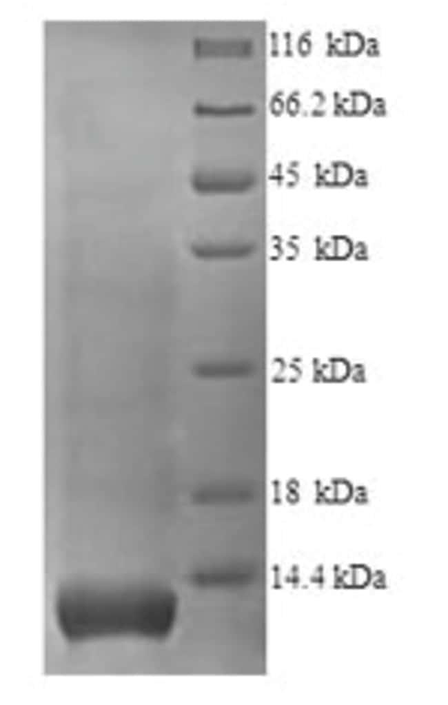 enQuireBio™Recombinant Human Glycophorin A / CD235a Protein 10μg enQuireBio™Recombinant Human Glycophorin A / CD235a Protein
