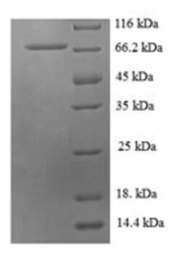enQuireBio™Recombinant Human Probable histidine--tRNA ligase, mitochondrial Protein 10μg enQuireBio™Recombinant Human Probable histidine--tRNA ligase, mitochondrial Protein