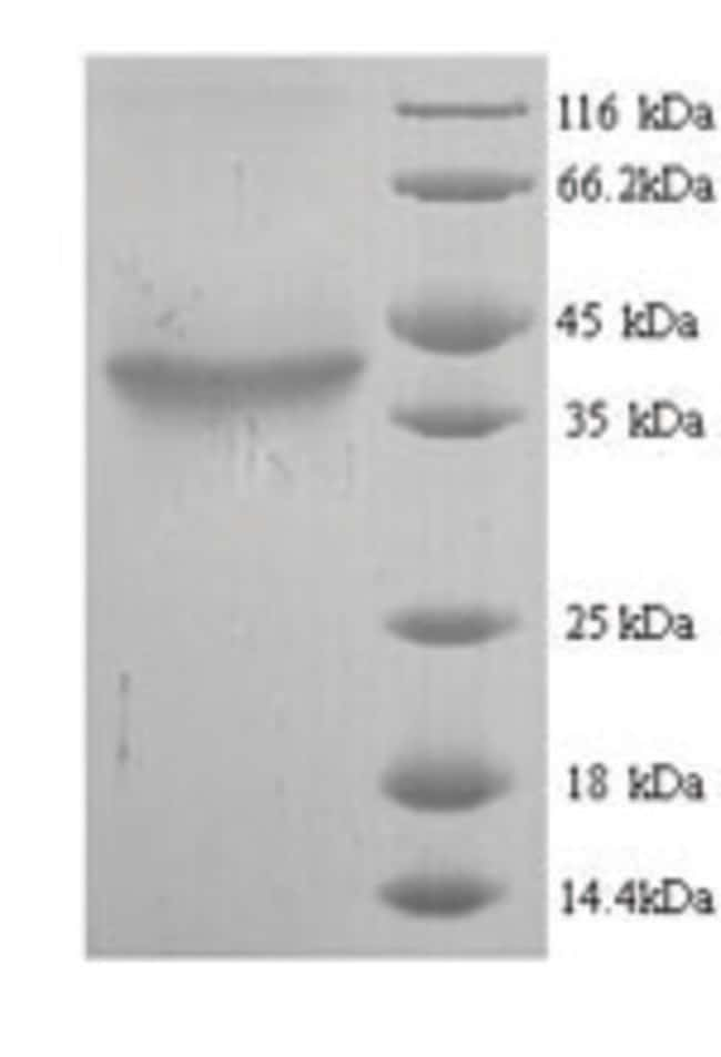 enQuireBio™ Recombinant Mouse Hyaluronan synthase 2 Protein 1mg enQuireBio™ Recombinant Mouse Hyaluronan synthase 2 Protein