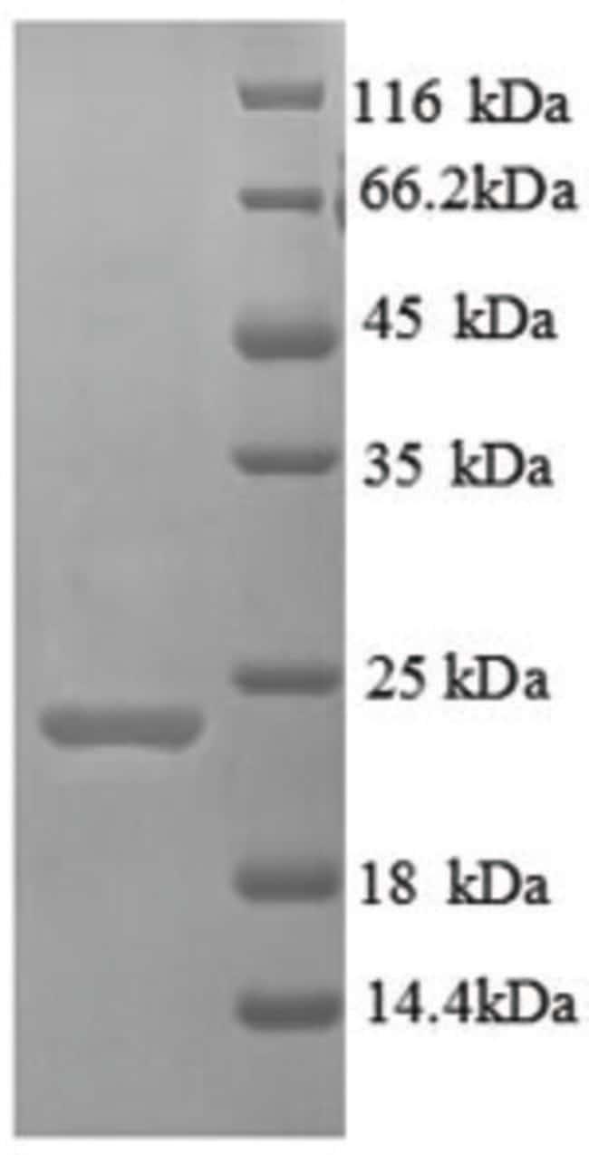 enQuireBio™Recombinant Human TIM3 Protein 200μg enQuireBio™Recombinant Human TIM3 Protein