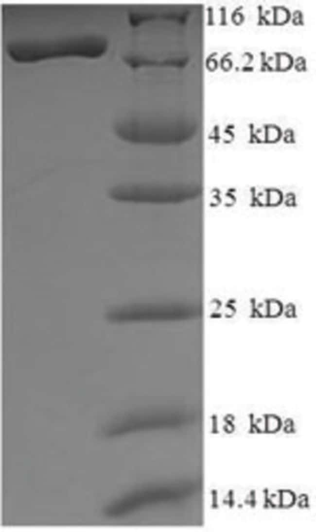 enQuireBio™ Recombinant Human Histone deacetylase 1 Protein 10μg enQuireBio™ Recombinant Human Histone deacetylase 1 Protein