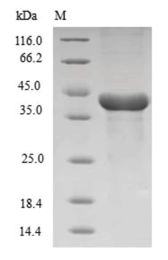 enQuireBio™Recombinant Human Histone H3.1 Protein 50μg enQuireBio™Recombinant Human Histone H3.1 Protein