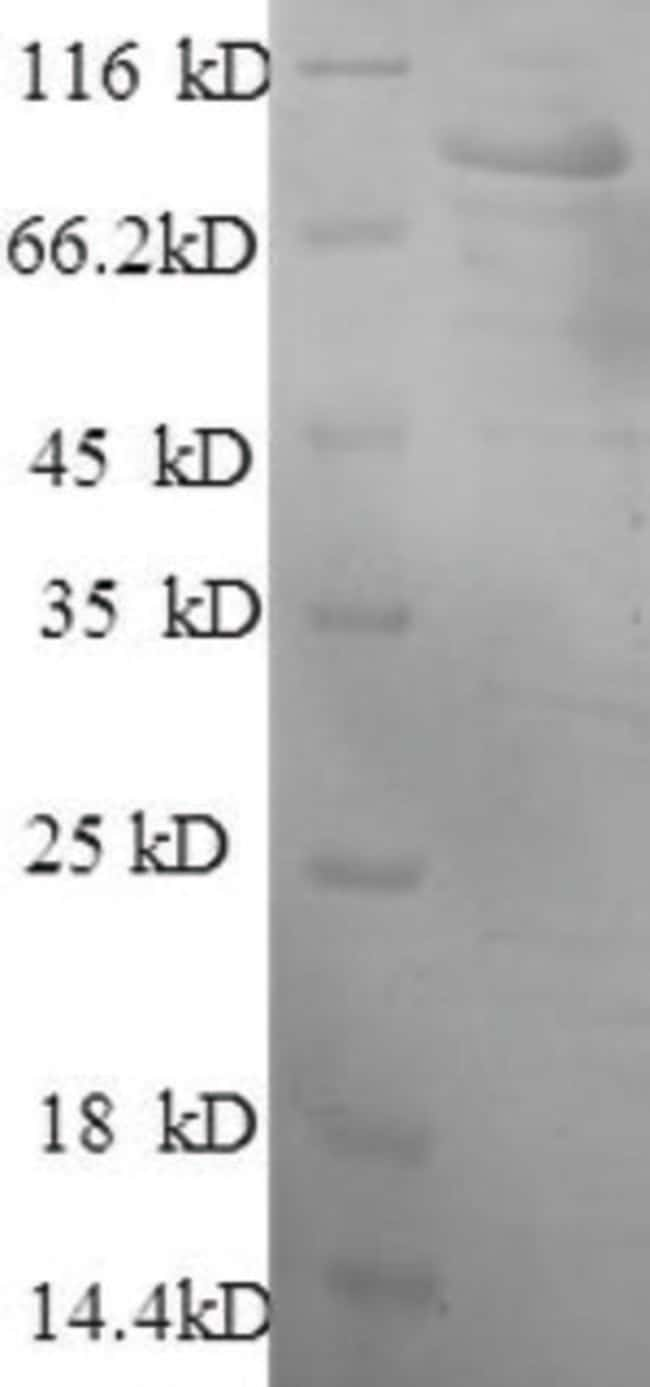enQuireBio™Recombinant Human Hexokinase-1 Protein 1mg enQuireBio™Recombinant Human Hexokinase-1 Protein