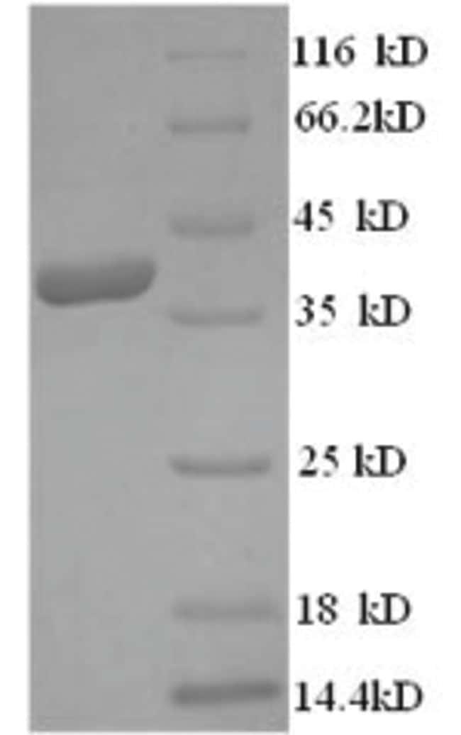 enQuireBio™Recombinant Human HMGCR Protein 10μg enQuireBio™Recombinant Human HMGCR Protein
