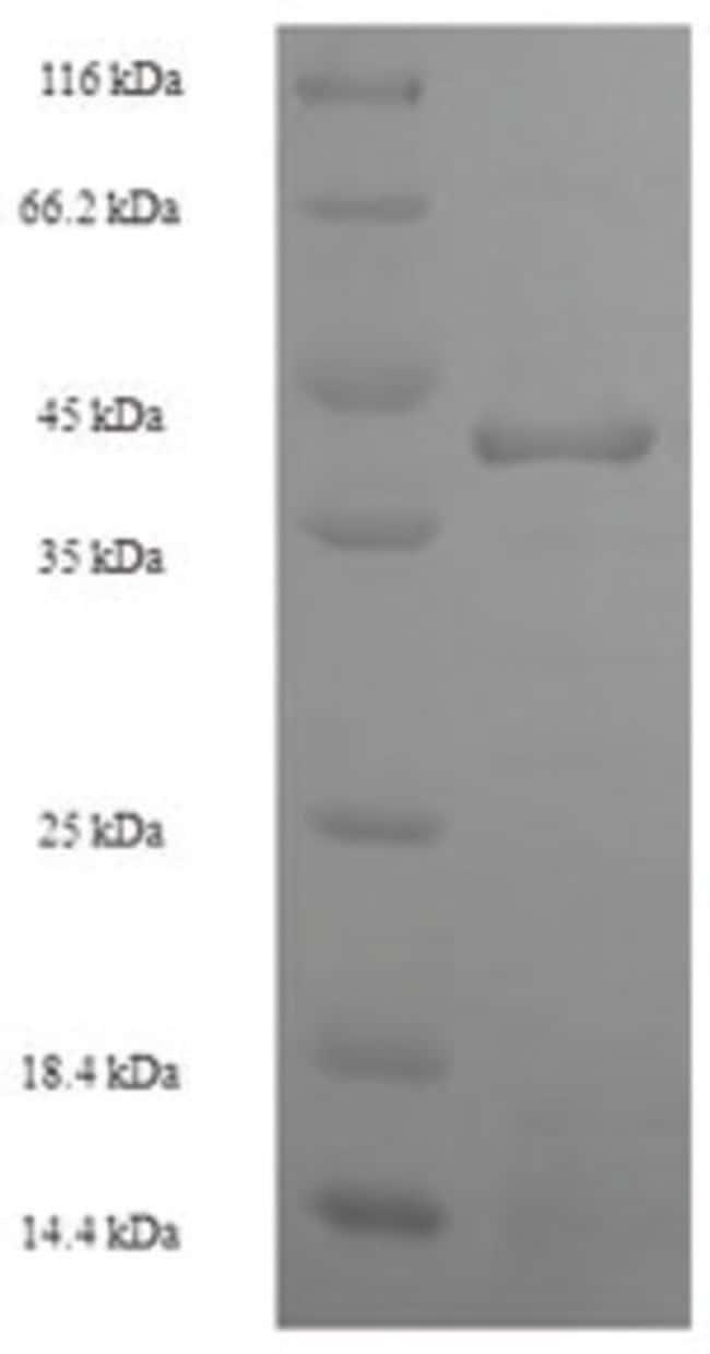 enQuireBio™Recombinant Human Heterogeneous nuclear ribonucleoprotein 1 200μg enQuireBio™Recombinant Human Heterogeneous nuclear ribonucleoprotein 1