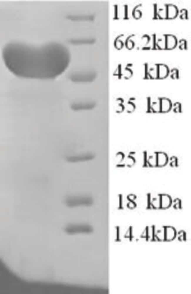 enQuireBio™Recombinant Rat Hemopexin / HPX Protein 500μg enQuireBio™Recombinant Rat Hemopexin / HPX Protein
