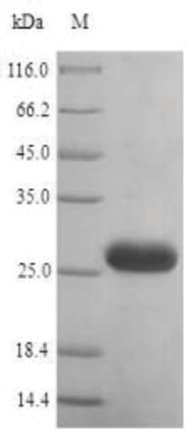 enQuireBio™Recombinant Human Histamine H1 receptor Protein 10μg enQuireBio™Recombinant Human Histamine H1 receptor Protein
