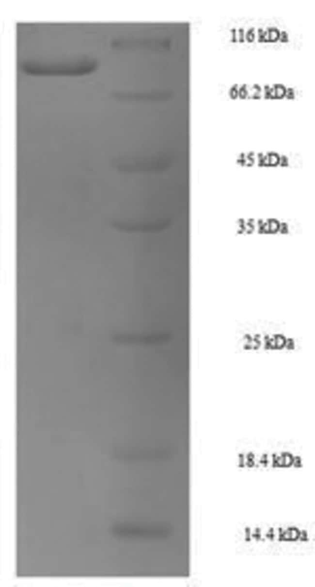 enQuireBio™Recombinant Mouse HSP70 / HSPA1A Protein 200μg enQuireBio™Recombinant Mouse HSP70 / HSPA1A Protein