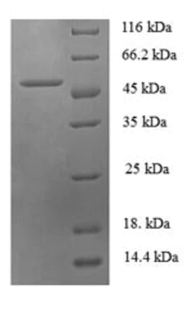enQuireBio™Recombinant Human Checkpoint protein HUS1 Protein 500μg enQuireBio™Recombinant Human Checkpoint protein HUS1 Protein
