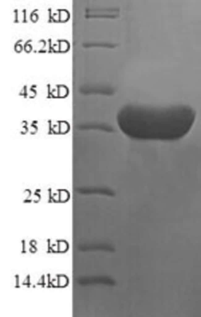enQuireBio™Recombinant Human Islet cell autoantigen 1 Protein 1mg enQuireBio™Recombinant Human Islet cell autoantigen 1 Protein