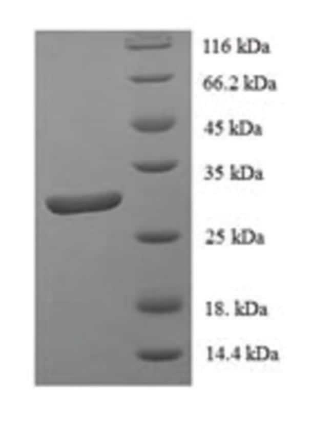 enQuireBio™Recombinant Human DNA-binding protein inhibitor ID-1 Protein 100μg enQuireBio™Recombinant Human DNA-binding protein inhibitor ID-1 Protein