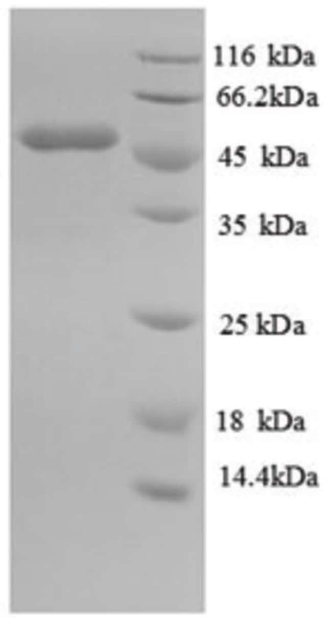 enQuireBio™Recombinant Mouse IDH1 Protein 10μg enQuireBio™Recombinant Mouse IDH1 Protein