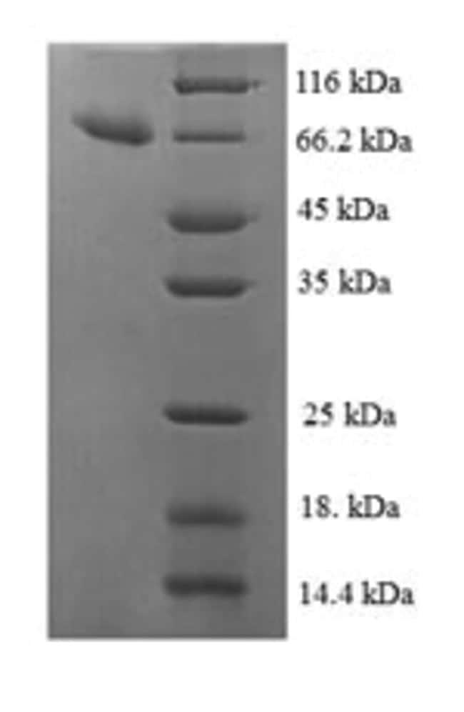 enQuireBio™Recombinant Human IDH3B Protein 50μg enQuireBio™Recombinant Human IDH3B Protein