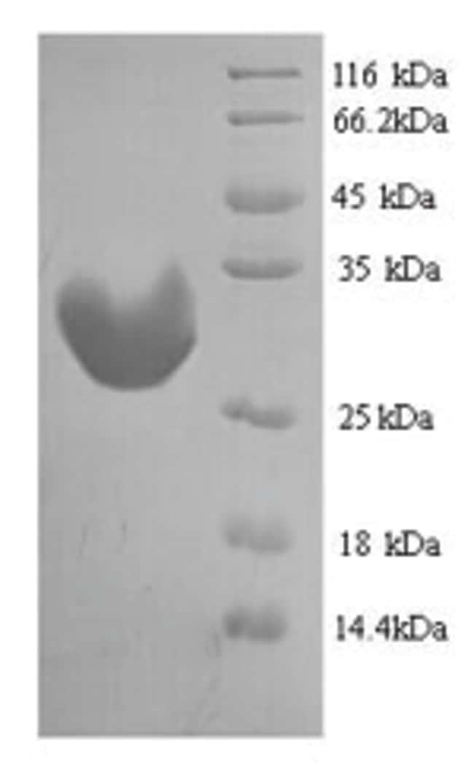 enQuireBio™Recombinant Mouse IGFBP1 Protein: Proteínas A-Z Proteínas