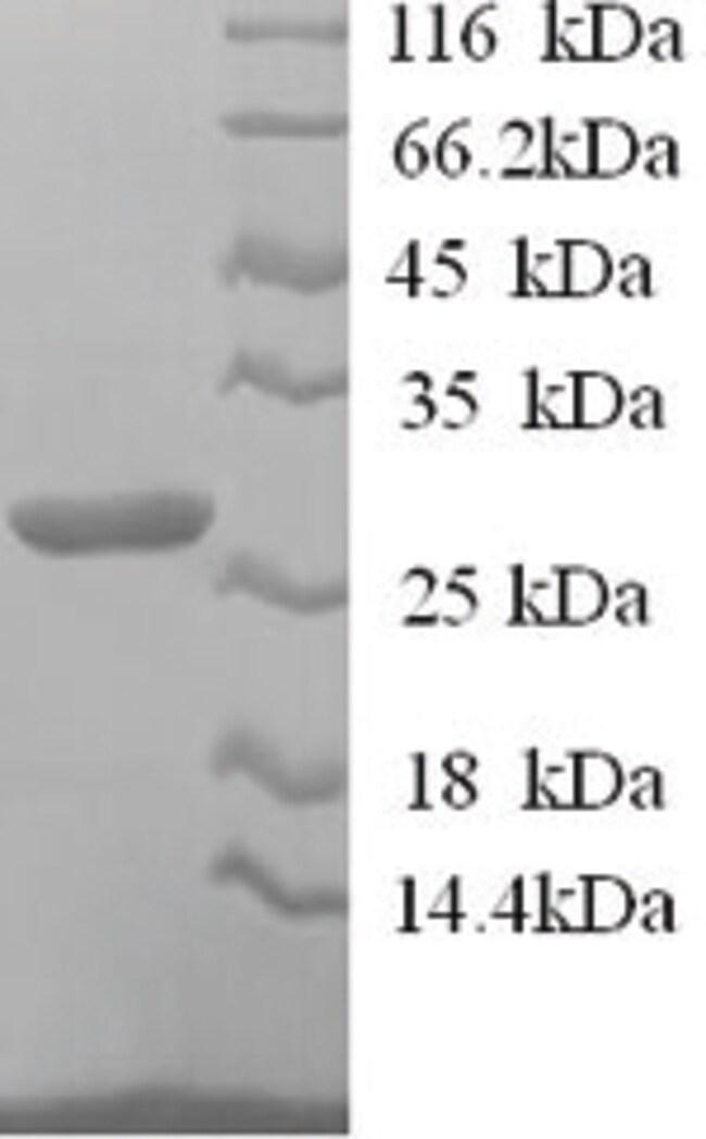 enQuireBio™Recombinant Sheep IL12B / P40 Protein 200μg enQuireBio™Recombinant Sheep IL12B / P40 Protein