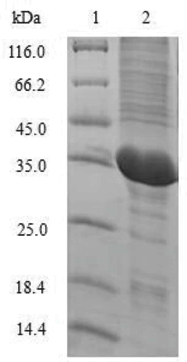 enQuireBio™Recombinant Macaque IL2 / Interleukin-2 Protein 10μg enQuireBio™Recombinant Macaque IL2 / Interleukin-2 Protein
