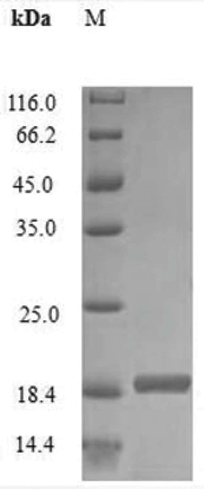 enQuireBio™Recombinant Rabbit IL2 / Interleukin-2 Protein 50μg enQuireBio™Recombinant Rabbit IL2 / Interleukin-2 Protein