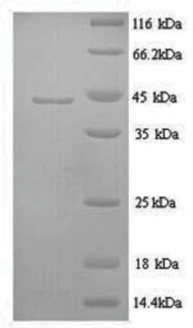 enQuireBio™ Recombinant Sheep IL6 / Interleukin-6 Protein 100μg enQuireBio™ Recombinant Sheep IL6 / Interleukin-6 Protein