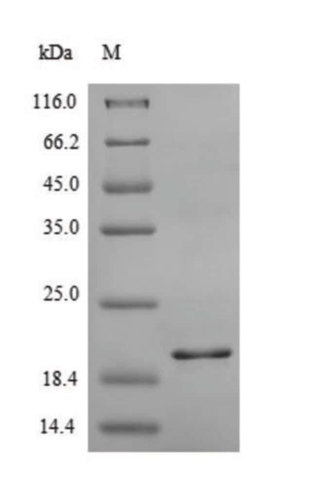 enQuireBio™Recombinant Human C-X-C chemokine receptor type 2 Protein 200μg enQuireBio™Recombinant Human C-X-C chemokine receptor type 2 Protein
