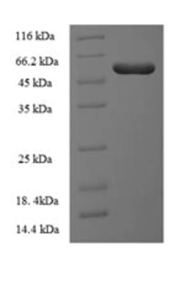 enQuireBio™Recombinant Human ILKAP Protein 500μg enQuireBio™Recombinant Human ILKAP Protein