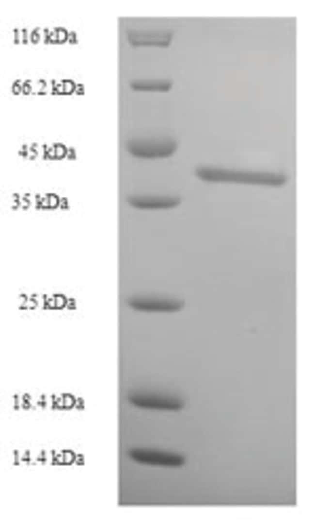 enQuireBio™Recombinant Human Intestine-specific homeobox Protein 50μg enQuireBio™Recombinant Human Intestine-specific homeobox Protein