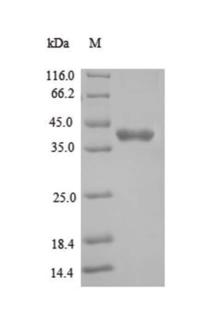 enQuireBio™Recombinant Mouse Tyrosine-protein kinase JAK1 Protein 1mg enQuireBio™Recombinant Mouse Tyrosine-protein kinase JAK1 Protein