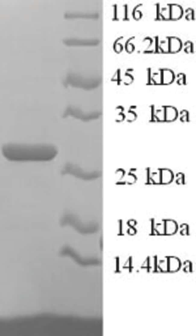 enQuireBio™Recombinant Human JAM-2 / JAM-B Protein 100μg enQuireBio™Recombinant Human JAM-2 / JAM-B Protein