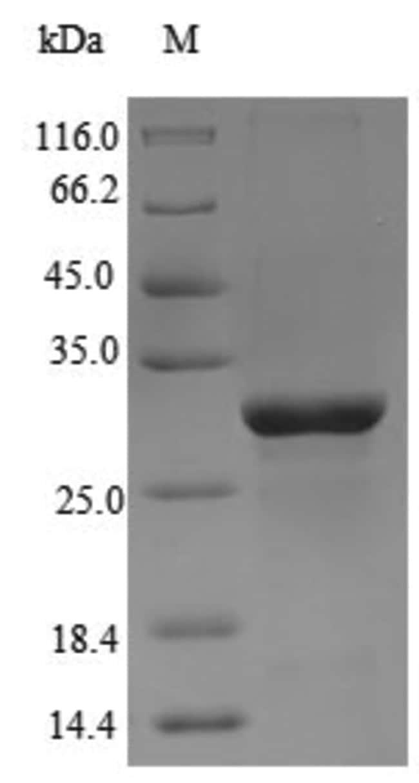 enQuireBio™Recombinant Chicken Anosmin-1 Protein 1mg enQuireBio™Recombinant Chicken Anosmin-1 Protein