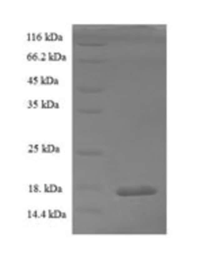 enQuireBio™ Recombinant Rat Kcne2 Protein 1mg enQuireBio™ Recombinant Rat Kcne2 Protein
