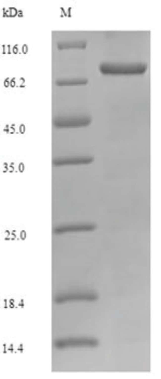 enQuireBio™Recombinant Mouse KEAP1 / INRF2 Protein 10μg enQuireBio™Recombinant Mouse KEAP1 / INRF2 Protein
