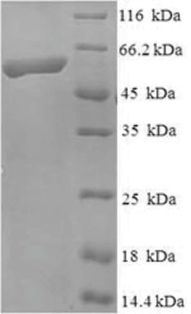 enQuireBio™Recombinant Mouse Kinesin-like protein KIF1A Protein 200μg enQuireBio™Recombinant Mouse Kinesin-like protein KIF1A Protein