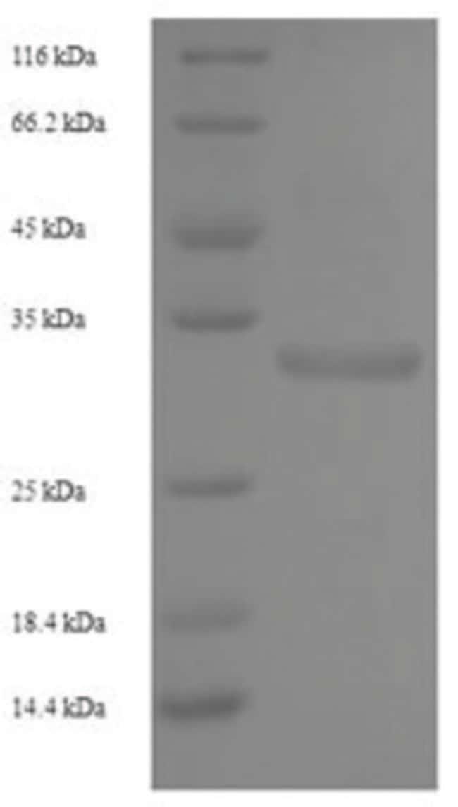 enQuireBio™Recombinant Human NKG2-C type II integral membrane Protein 10μg enQuireBio™Recombinant Human NKG2-C type II integral membrane Protein
