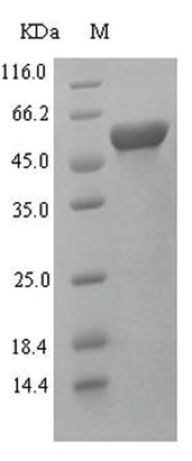 enQuireBio™Recombinant Rat Kynurenine 3-monooxygenase Protein 200μg enQuireBio™Recombinant Rat Kynurenine 3-monooxygenase Protein