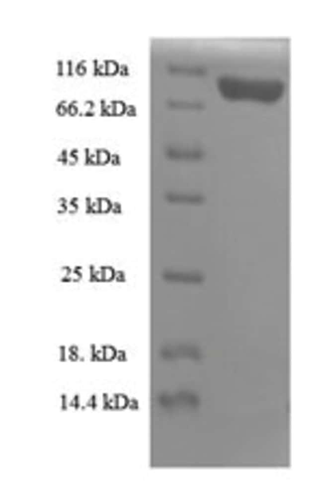 enQuireBio™Recombinant Mouse Importin subunit beta-1 Protein 10μg enQuireBio™Recombinant Mouse Importin subunit beta-1 Protein