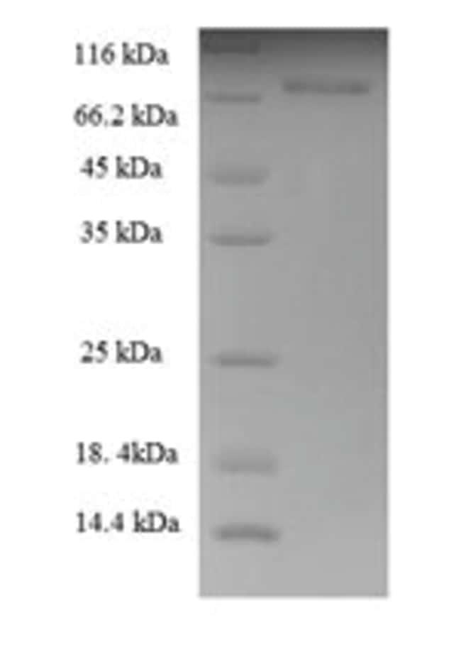 enQuireBio™Recombinant Human Cytokeratin 8 Protein 100μg enQuireBio™Recombinant Human Cytokeratin 8 Protein