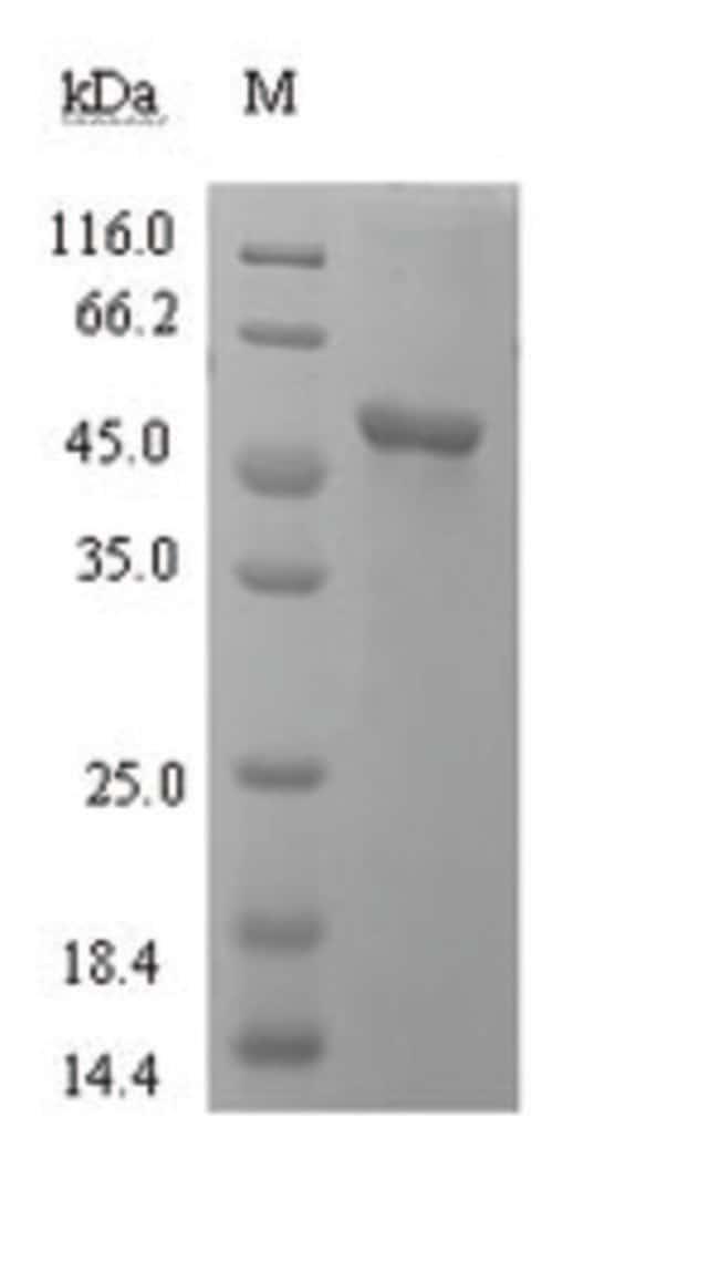enQuireBio™Recombinant Human L-lactate dehydrogenase C chain Protein 500μg enQuireBio™Recombinant Human L-lactate dehydrogenase C chain Protein